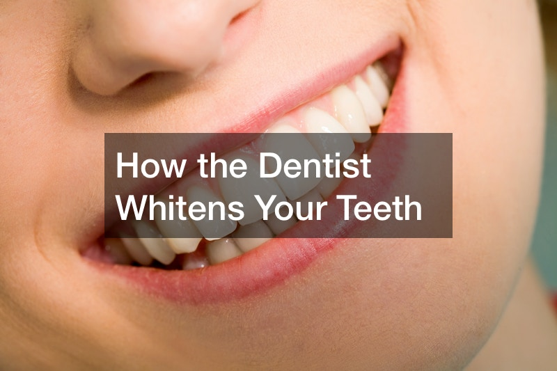 How the Dentist Whitens Your Teeth